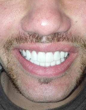 Dental_Crowns--element45