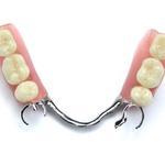 Denture, Crown, Bridge, False Teeth