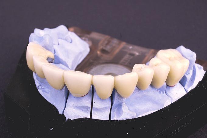 bigstock_Dentist_2268441