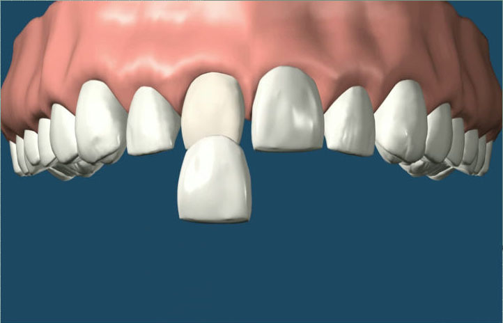 Porcelain-Veneers (1)