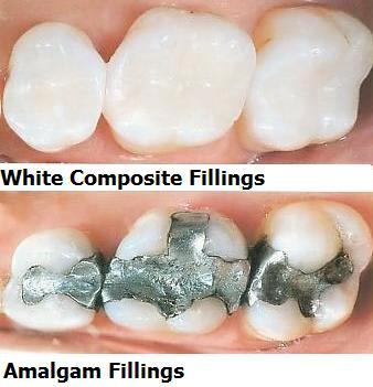 White-Fillings
