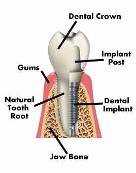 tooth_implant_diagram